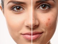 5 of your skin's worse enemies. Eating habits that ruin your skin